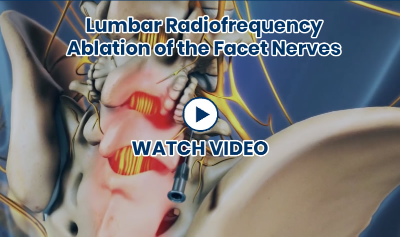 Lumbar Radiofrequency Ablation of the Facet Nerves Video