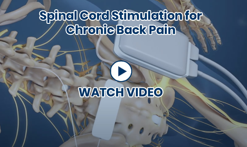 Spinal Cord Stimulation for Chronic Back Pain Video