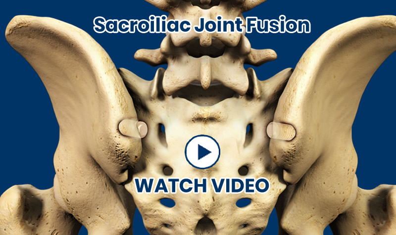 Treatments - Sacroiliac Joint Fusion Video Thumb