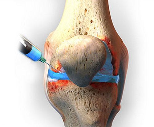 Pain Treatments Procedures - PRP